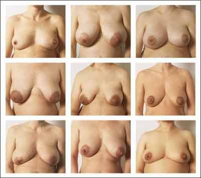 ingen damer hvor længe voksende bryster